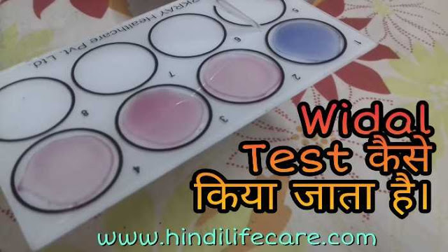 how-to-do-widal-test-in-hindi